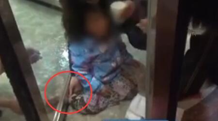 揪心!济宁小女孩旋转门里玩耍时摔倒 脚踝卡在转门底