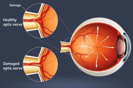 """德州眼科专家提醒:青光眼患者饮食有""""三忌"""""""