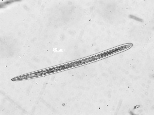 山东口岸首次从入境种苗中截获胼胝拟毛刺线虫