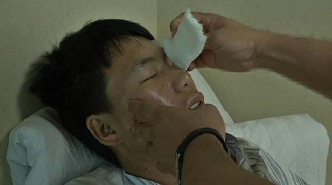 """眼角膜移植成功!四川小伙在济南术后第一天称""""看清了自己的脸"""""""