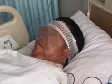 惊险!济南的哥凌晨遭抢劫被砍四刀 已脱离危险