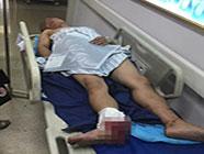 """济南中润世纪广场""""电梯惊魂"""" 维修时滑轮脱落3人受伤"""