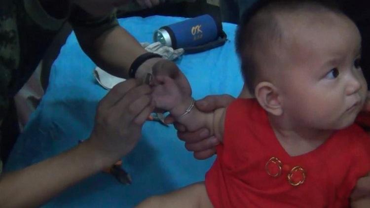 心疼!8个月幼童手卡削皮器刀刃缝隙 指甲削掉一块