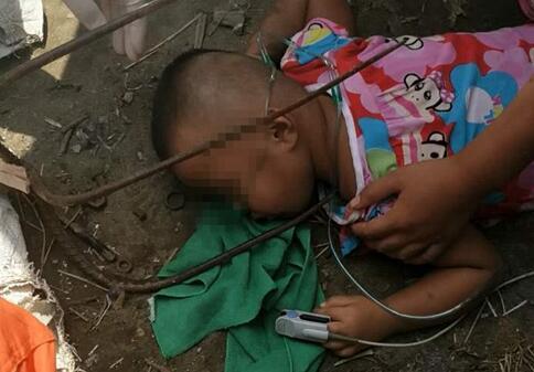 揪心!兰陵3岁幼童玩耍不慎摔倒 半米长铁叉插入肩膀