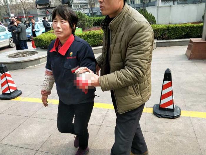 茌平一女子手指不慎被压断急需救治 济聊两地开通绿色通道
