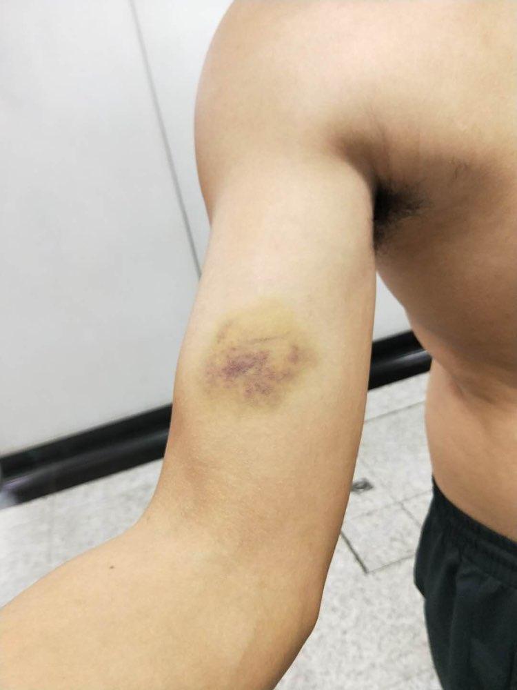 济南:民警阻止打人被咬伤 女子因妨害执行公务被刑拘