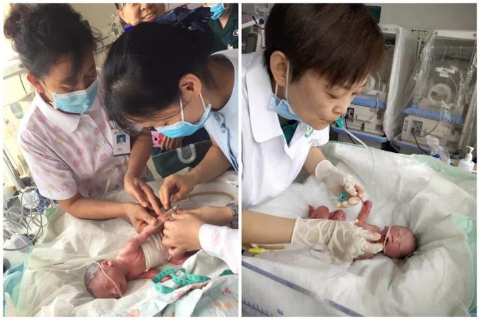 383秒的爱!茌平一产妇伏天厕所产子 医护人员火速救治母子平安
