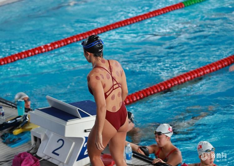 2018雅加达亚运会:游泳选手热衷拔罐 中医秘方流行