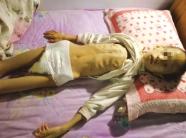 谁来帮帮这个孩子?寿光8岁男童不幸患脑瘤 体重只有30斤