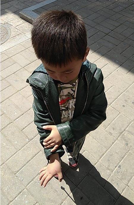 紧急求助!滨州5岁男孩被老鼠咬手,急寻出血热疫苗