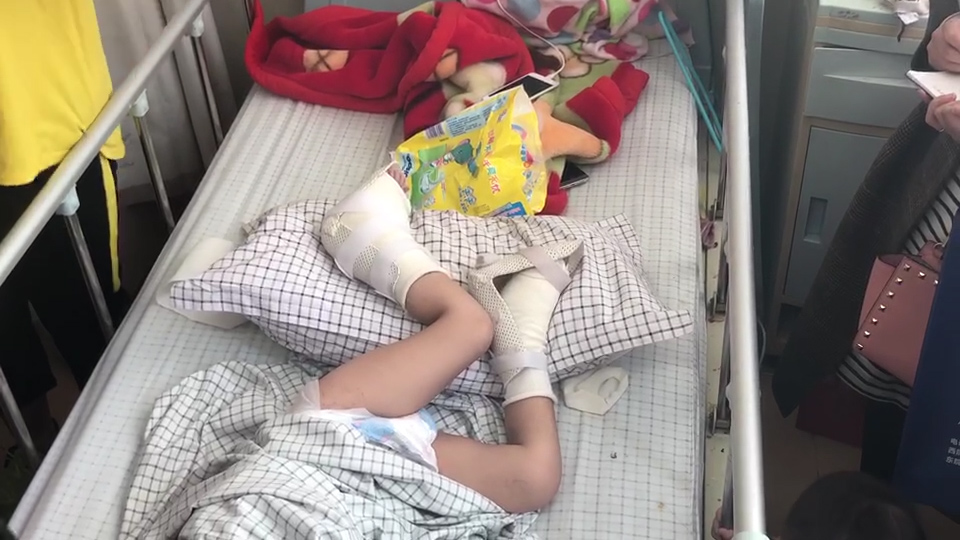 39秒丨3岁男孩遭大货车碾腿面临截肢 医院联合救治为其成功保肢