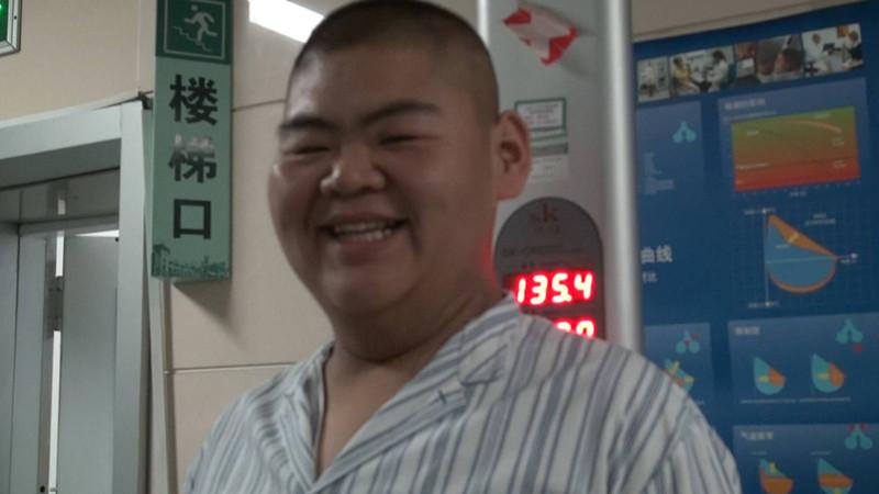 """21岁""""山东第一胖""""减了400斤!从668斤减到268斤"""