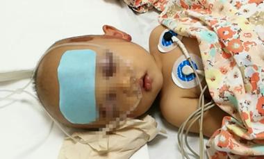 """急寻""""熊猫血""""救命!东营一岁半幼童被车刮伤,头部失血严重"""