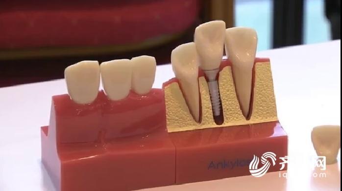 种植牙111.jpg