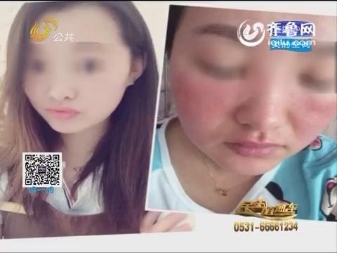 济南:涂抹化妆品过敏 女子美容变毁容