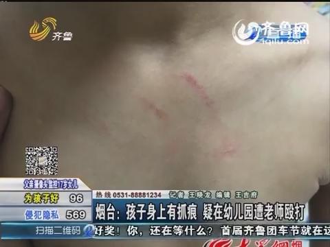 烟台:孩子身上有抓痕 疑在幼儿园遭老师殴打