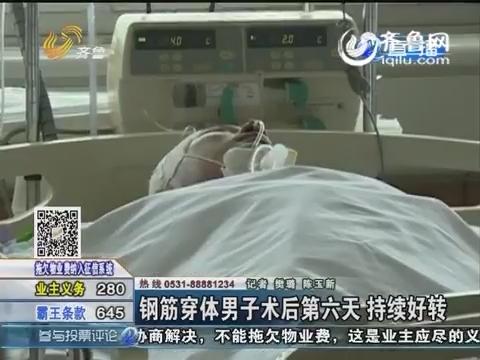 济南:钢筋穿体男子术后第六天 持续好转