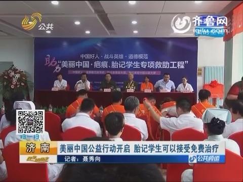 济南:美丽中国公益行动开启 胎记学生可以接受免费治疗