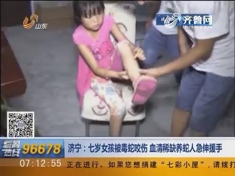 济宁:七岁女孩被毒蛇咬伤 血清稀缺养蛇人急伸援手