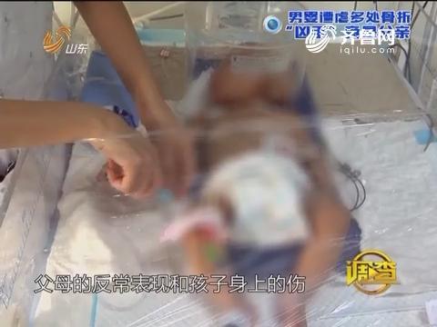 """调查:男婴遭虐多处骨折""""凶手""""竟是父亲"""