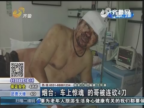 烟台:车上惊魂 的哥被连砍4刀