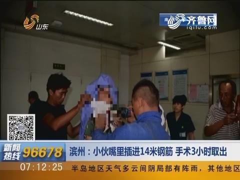 滨州:小伙嘴里插进14米钢筋 手术3小时取出