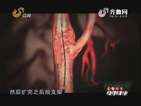 20160903《身体健康》:脑梗终结者之支架植入治疗