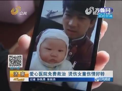 济南:爱心医院免费救治 烫伤女童伤情好转