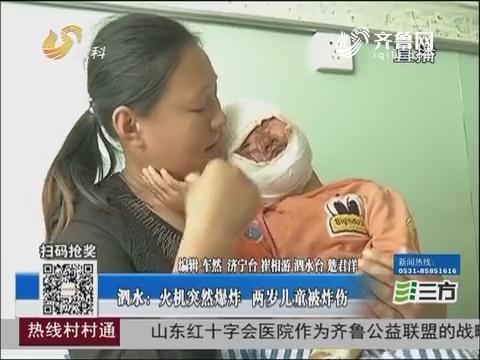 泗水:火机突然爆炸 两岁儿童被炸伤