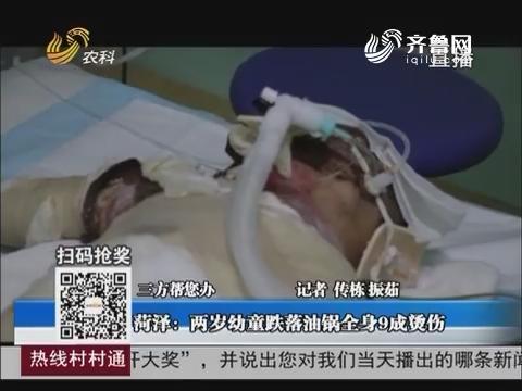 【三方幫您辦】菏澤:兩歲幼童跌落油鍋全身9成燙傷