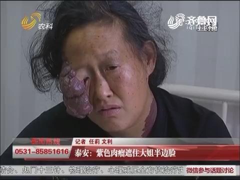 【三方帮您办】泰安:紫色肉瘤遮住大姐半边脸