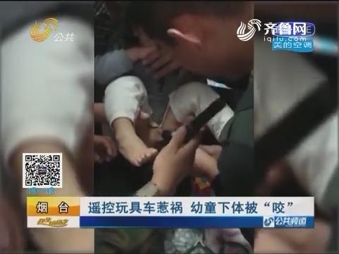 """烟台:遥控玩具车惹祸 幼童下体被""""咬"""""""