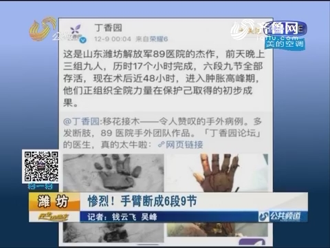 """潍坊:惨烈!手臂断成6段9节 3组9人完成了一场不可思议的""""断肢再植""""手术"""