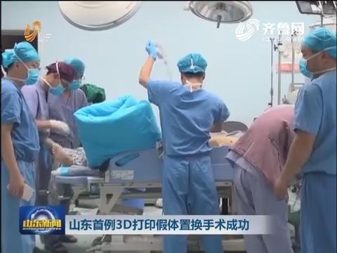 山东首例3D打印假体置换手术成功