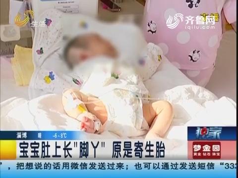"""青岛:宝宝肚上长了""""脚丫""""原是寄生胎"""