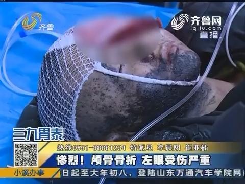济南:除夕将至 六岁男孩被严重炸伤