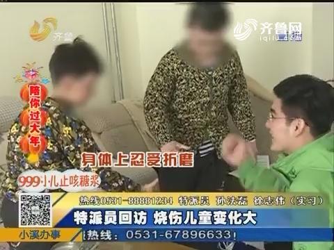 【陪你过大年】枣庄:特派员回访 烧伤儿童变化大