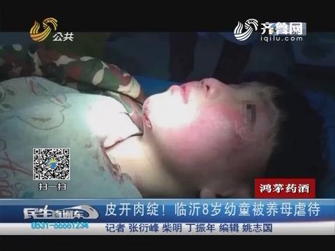 皮开肉绽!临沂8岁幼童被养母虐待