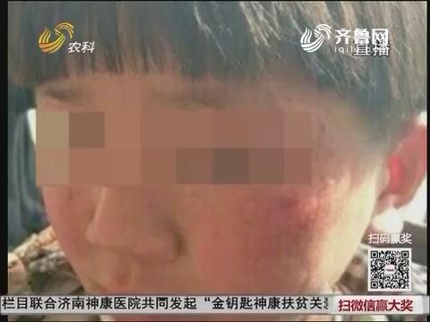临沂:皮开肉绽!8岁男孩遭养母虐待