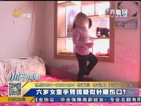 济南:六岁女童手臂现疑似针眼伤口?