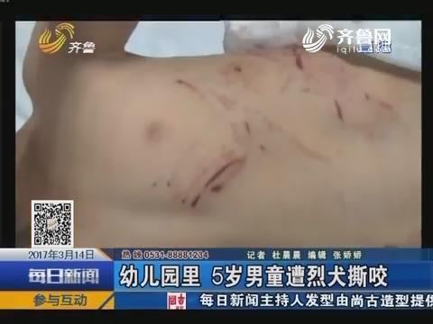 临沂:幼儿园里 5岁男童遭烈犬撕咬