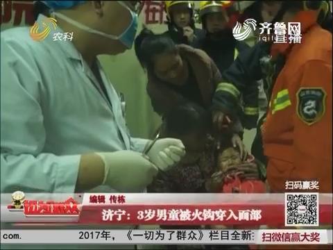 济宁:3岁男童被火钩穿入面部