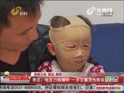 枣庄:电压力锅爆炸 一岁女童烫伤毁容