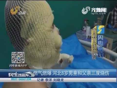 【闪电连线】燃气燃爆 河北8岁男童和父亲三度烧伤