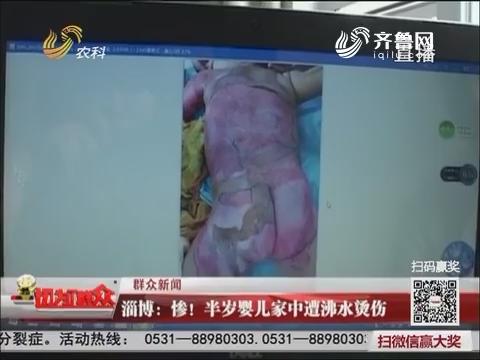 【群众新闻】淄博:惨!半岁婴儿家中遭沸水烫伤