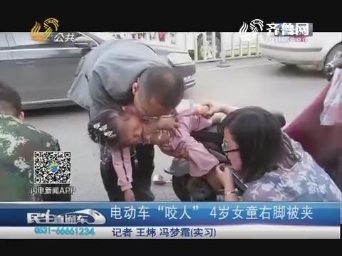"""济南:电动车""""咬人"""" 4岁女童右脚被夹"""