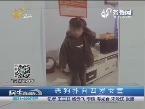 潍坊:恶狗扑向四岁女童 爱心汇聚齐救女童
