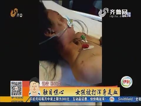 聊城:触目惊心 女孩被打浑身是血