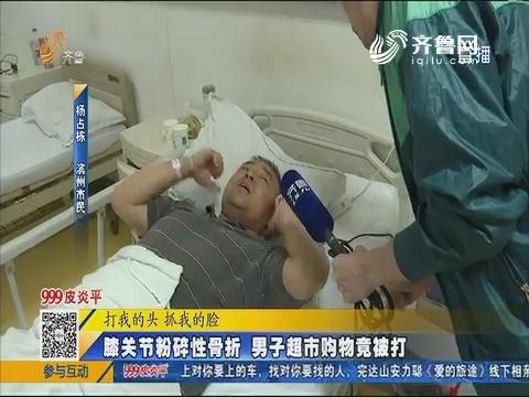 滨州:膝关节粉碎性骨折 男子超市购物竟被打