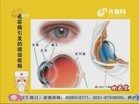 20170608《世医堂家有大中医》:糖尿病引发的眼部疾病